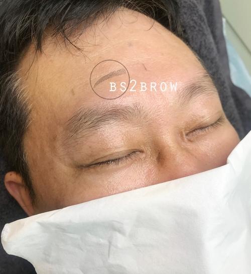 반영구남자눈썹 탈각 후/리터치전/한달후 (홍대/일산)