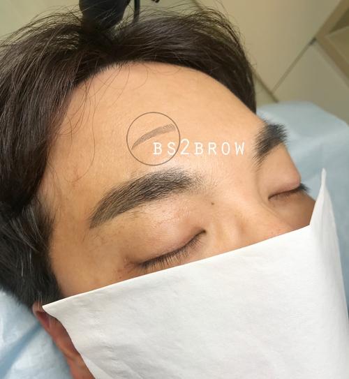 머신페더링 한달후/리터치전/탈각후 남자반영구 눈썹 문신 (홍대/일산)